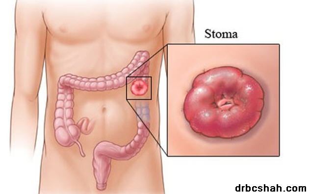 Colostomy-